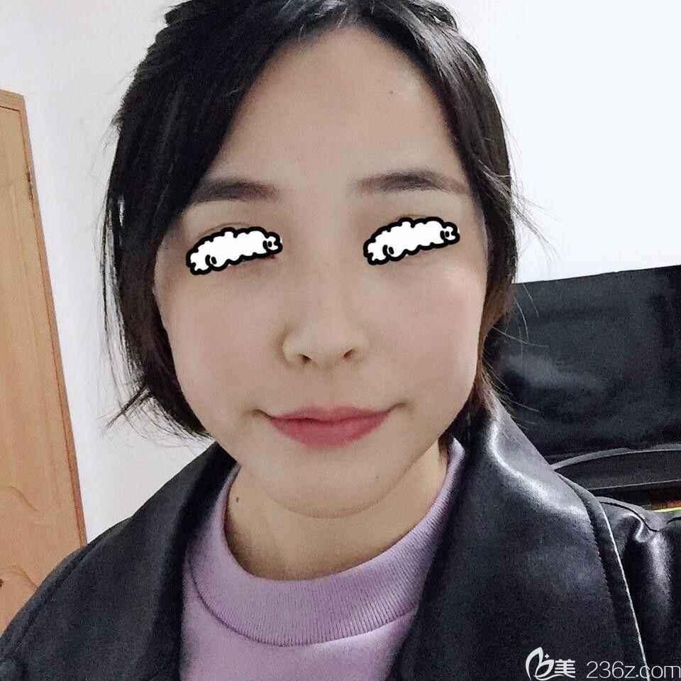 记录在青海西宁时光医院激光祛斑一个月恢复过程,看我如何摆脱麻子脸