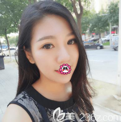 北京薇琳医美切开双眼皮玻尿酸丰下巴案例