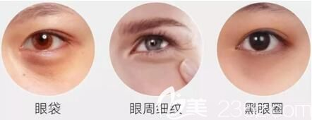 眼袋还会加速细纹、黑眼圈形成