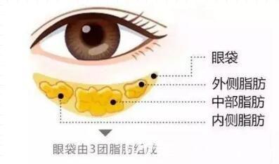 眼袋的组成介绍