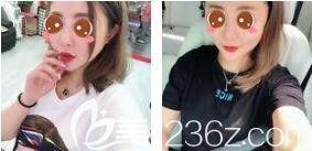 玻尿酸丰唇安全吗?我在上海愉悦美联臣做了玻尿酸丰唇半个月的时间就拥有了嘟嘟唇