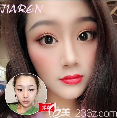 来看看我花一万多元找广州佳人整形医院王高峰做的双眼皮眼综合有多惊艳