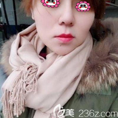 湘潭雅美做膨体隆鼻两年了,较近打算再去做个鼻翼缩小术