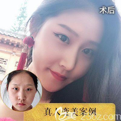 深圳润泽瑞尼丝陈敬武院长隆鼻案例