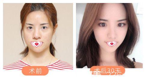正值4月整形旺季邯郸维多利亚推出一波优惠活动 580元拥有自然无痕双眼皮