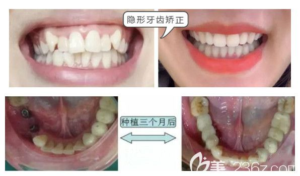 全好口腔种植牙和牙齿矫正案例