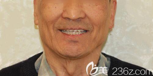 全口牙缺失的老爸在大连全好口腔做All-on-4种植牙后又能吃