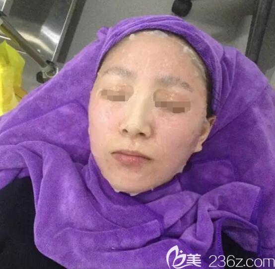 刚做完术后需要敷医用面膜缓解皮肤压力