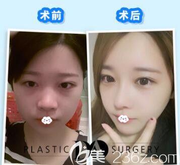 韩国DA整形外科医院李相雨磨骨瘦脸去下颌角案例效果对比图