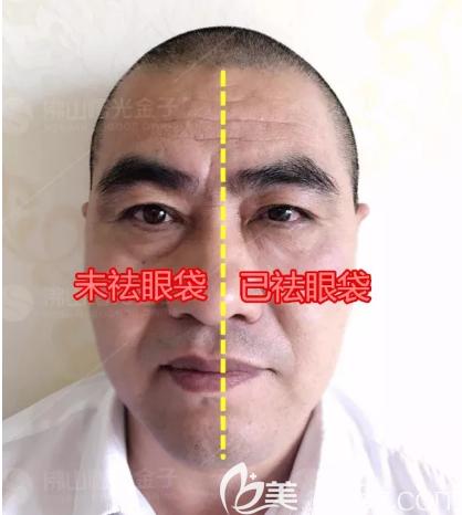 佛山曙光金子甘国端院长祛眼袋案例对比图