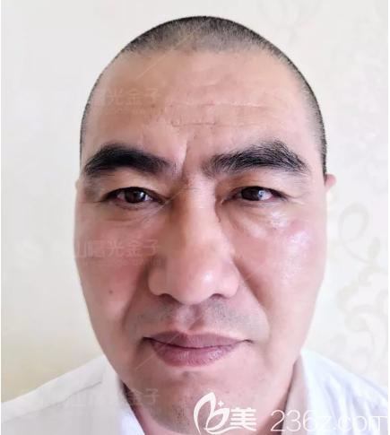 佛山曙光金子医学美容整形医院甘国端术后照片1