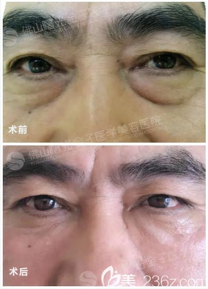 佛山曙光金子甘国端院长祛眼袋价格6800元