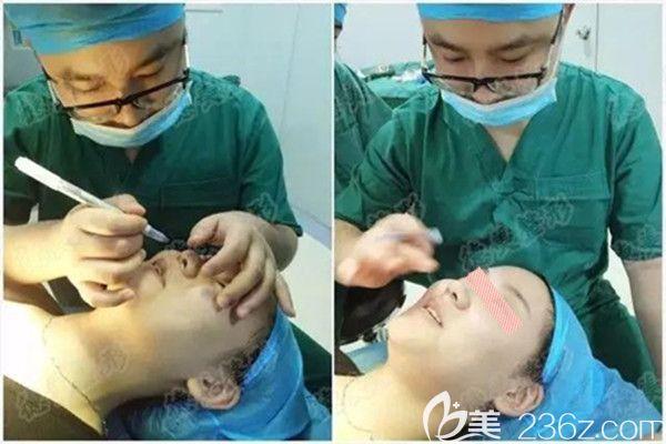 符主任做鼻综合术前设计