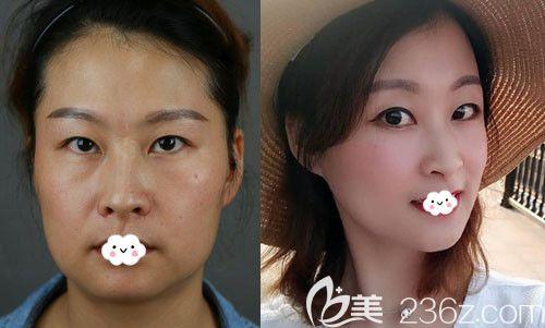 上海首尔丽格洪性范去下颌角真人案例效果对比图
