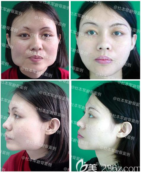 广州南方医院杜本军做的下颌角磨骨案例