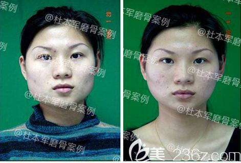 广州南方医院杜本军磨骨手术案例