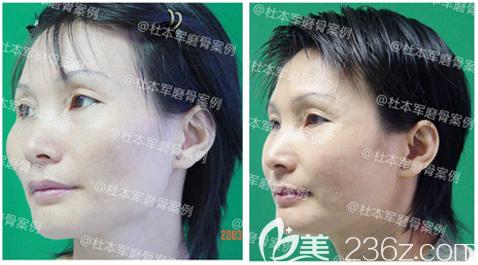 广州南方医院整形科杜本军做的颧骨内推手术案例