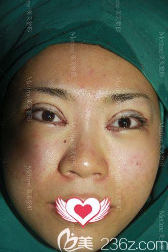 郭东超刚给我做完双眼皮手术的样子