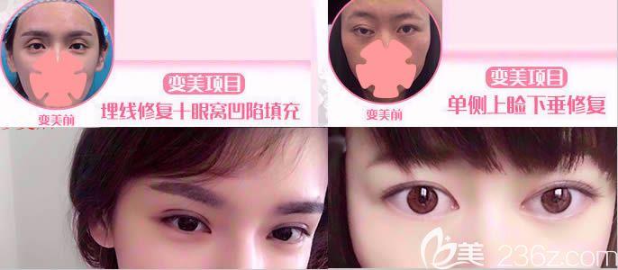 长春珍妮整形双眼皮失败修复效果
