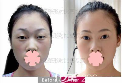 长春珍妮双眼皮+面部脂肪填充前后效果图