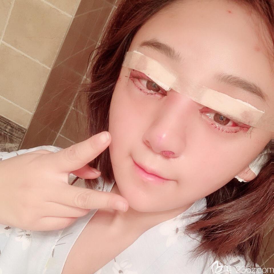 合肥白领安琪儿眼综合+鼻综合术后当天