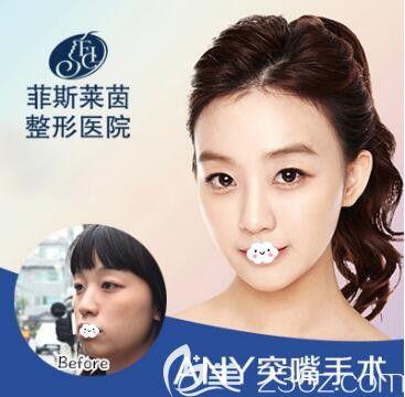 韩国菲斯莱茵李真秀院长双鄂手术突嘴矫正案例