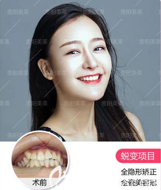 贵阳美莱哪个医生做牙齿矫正好