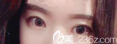 在韩国本爱做眼综合手术1个月