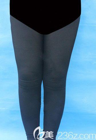 我的腿太粗了 找呼和浩特京美整形医院刘野医生做了大腿吸脂和小腿吸脂手术