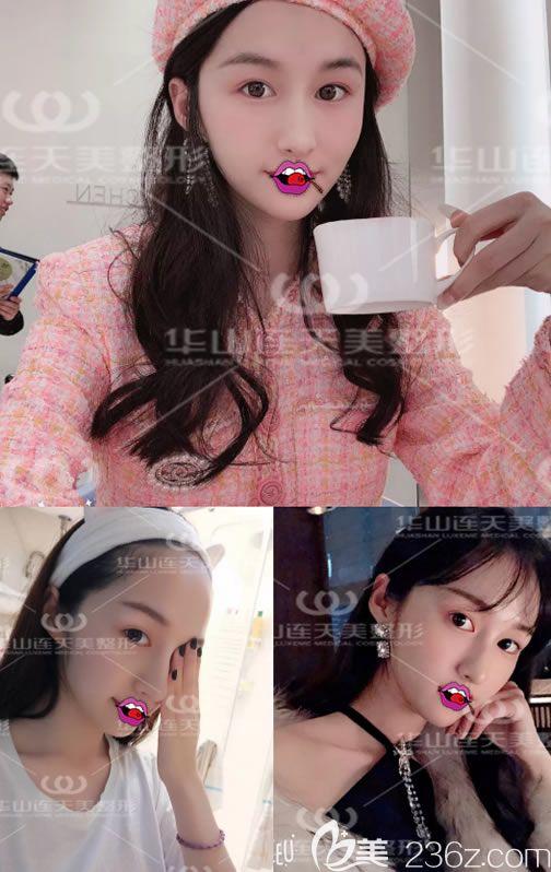 快来看,我要直播在杭州华山连天美医院程琳做长效脂肪胶填充全脸的手术过程和恢复效果啦!