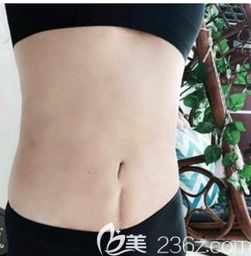 说说我去深圳富华找曹孟君做土麦森腰腹吸脂和自体脂肪隆胸的经历和感受,附吸脂手术价格表