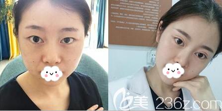 成都星范刘向文双眼皮术前术后对比图