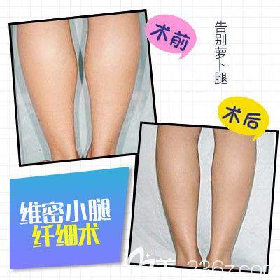 陈育哲教授小腿吸脂手术案例