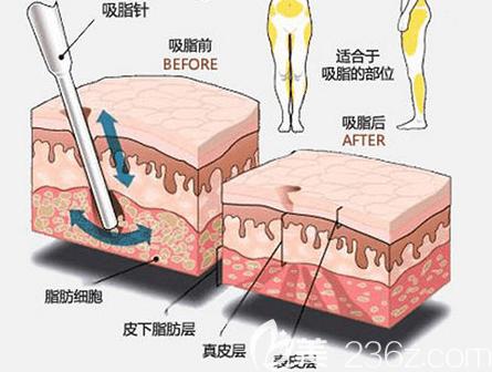 北京艺美吸脂前后效果示意图