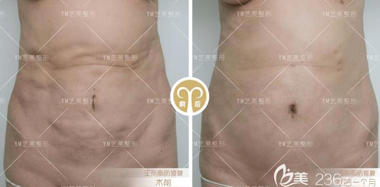 北京艺美王东医生腰腹部吸脂案例