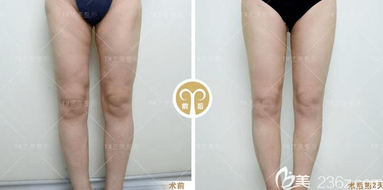 北京艺美王东医生腿部吸脂失败修复案例