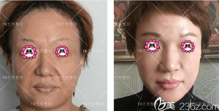 北京艺美王东医生面部吸脂失败修复案例