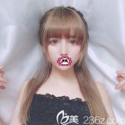 只是在邵阳温州小张整形打了瘦脸针,做了全切双眼皮眼综合,没想到……