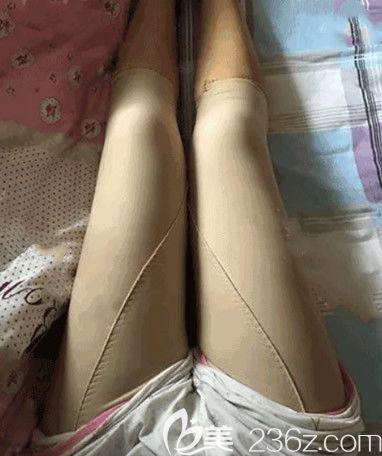 先让内蒙古永泰整形王春燕院长做个大腿吸脂手术试试 效果好了我再去做腰腹吸脂