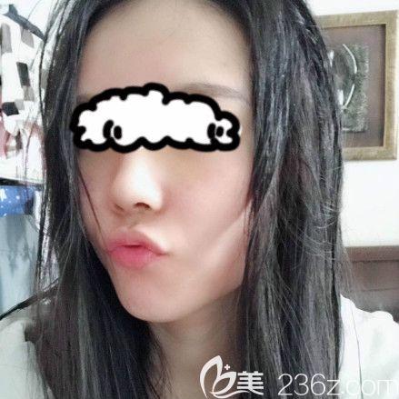讲述我在西宁韩美做硅胶+耳软骨隆鼻的真实感受,并附鼻综合术后1-7天的照片