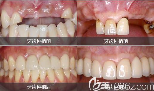 南宁洋紫荆口腔牙齿种植效果前后对比图