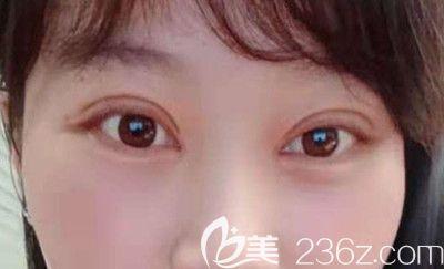 单眼皮和双眼皮的区别哪个好看?看武汉欧燕医美张明医生做全切双眼皮综合术后恢复案例图知晓
