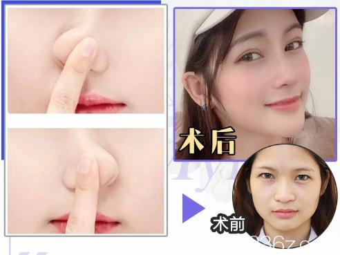 广州美莱罗延平隆鼻案例