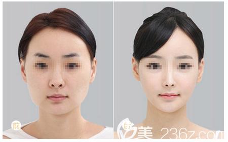 广州美恩徐威强下颌角颧骨整形案例
