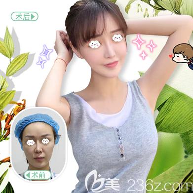 北京东方和谐冯斌医生自体脂肪面部填充案例