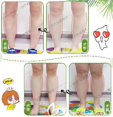 北京东方和谐冯斌医生腿部吸脂案例