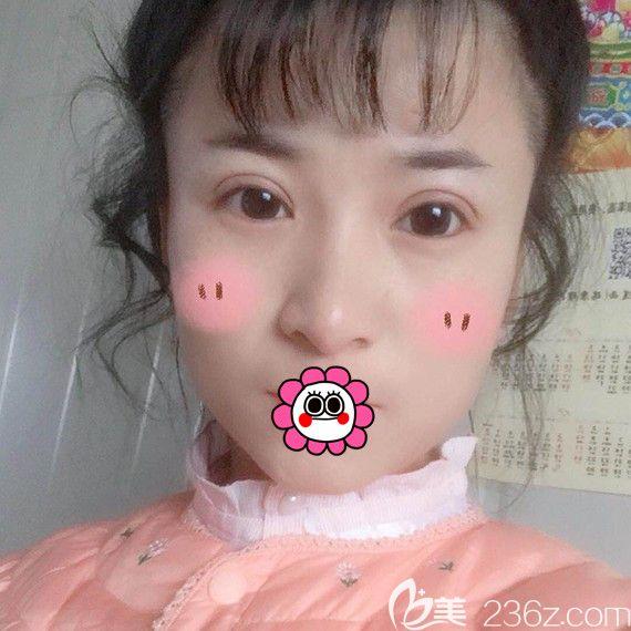 找哈尔滨臻美专注眼鼻修复的王丹丹做双眼皮修复后,明白了适合自己的才更好