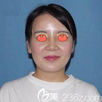 湖州曙光李军给我介绍了韩式生科1段2段3段硅胶假体的区别和价格后,我选择做了韩式生科2段假体隆鼻手术