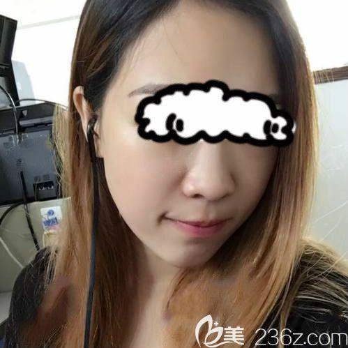 脸型窄长的我找西宁夏都周婷做自体脂肪全脸填充后 脸竟然小了一圈!