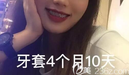 为了矫正深覆合和我的笑露牙龈,4个多月前我在广州致美口腔戴上了金属钢丝牙套